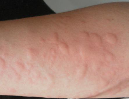 劃痕性蕁麻疹有哪些癥狀?蕁麻疹如何檢查出來? - 每日頭條
