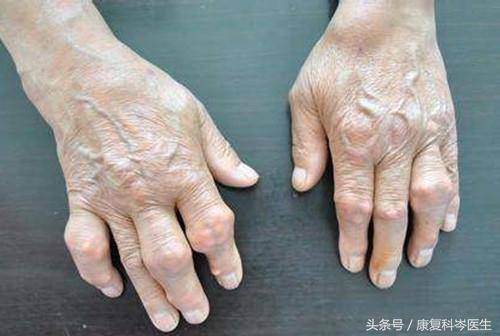 一文讀懂「骨性關節炎」與「類風濕關節炎」的異同! - 每日頭條