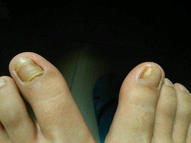 灰指甲初期的表現癥狀有哪些?為你細講如何預防灰指甲? - 每日頭條