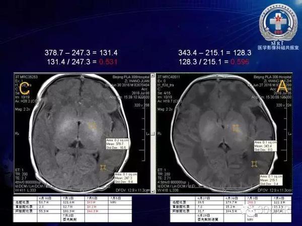 新生兒高膽紅素血癥及膽紅素腦病文獻複習與MRI診斷 - 每日頭條