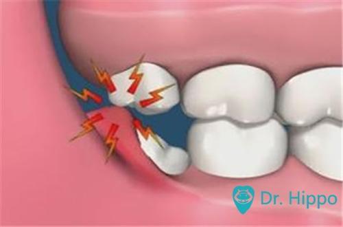 什麼是智齒冠周炎? - 每日頭條