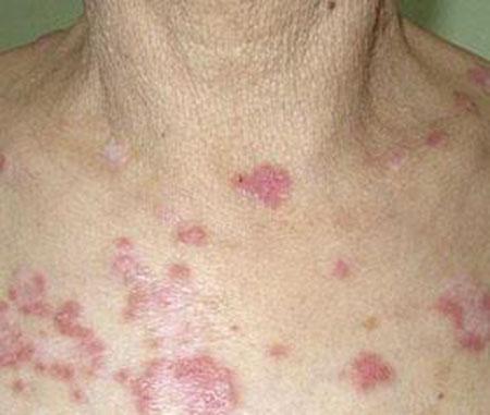 身上長二期梅毒疹怎麼辦 - 每日頭條
