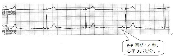 我真的需要安裝心臟起搏器嗎? - 每日頭條