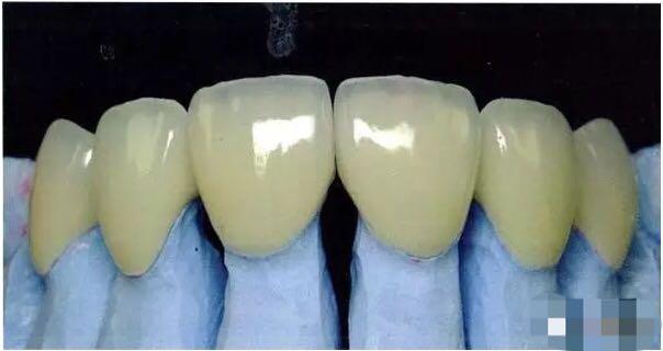 金屬烤瓷牙真的有毒嗎? - 每日頭條