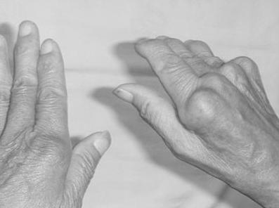 類風濕關節炎畸形特徵日常注意哪些 - 每日頭條