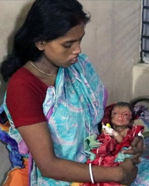 Parul Patro holds her newborn son who was born with Progeria