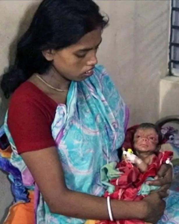 Parul Patro holds her newborn son who was born with Progeria