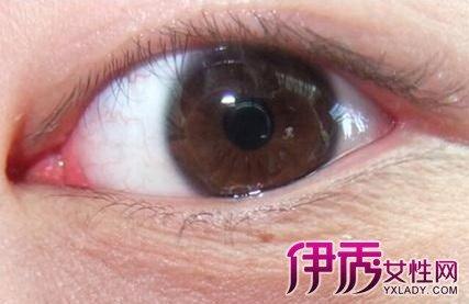 眼角紅腫怎麼辦?護理知識大曝光 - 壹讀