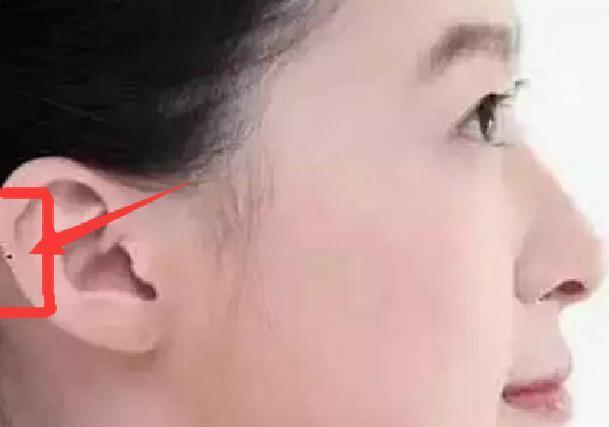 面相上來說耳朵上有痣說明了什麼 - 壹讀