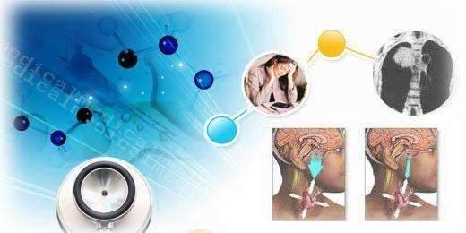 甲狀腺炎的分類特點,診斷及治療 - 壹讀