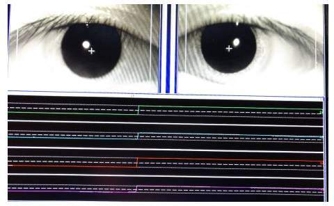 溫彥華教授:眼震電圖的臨床應用要點及注意事項 - 壹讀