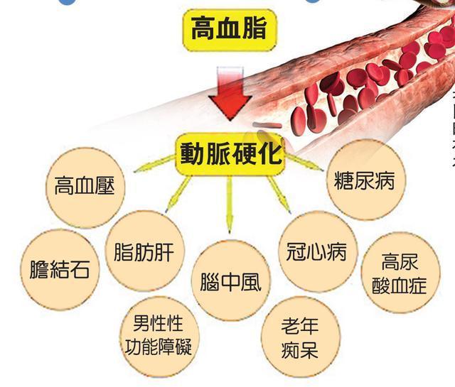 高脂血與高血壓是什麼?都有哪些癥狀?它們有什麼關係? - 壹讀