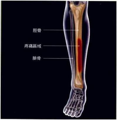 一張圖緩解「小腿前側疼痛」 | 收藏貼 - 壹讀