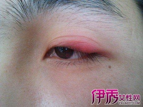 眼皮腫痛是怎麼回事呢? 「針眼」在醫學上叫麥粒腫 - 壹讀