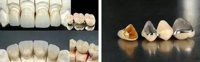 固定假牙、活動假牙、種植牙。哪一種假牙適合你? - 壹讀