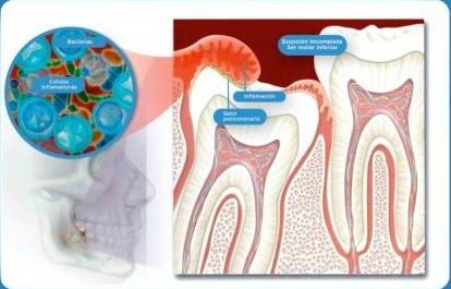 為什麼牙醫都喜歡拔智齒? - 壹讀