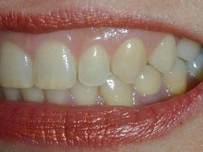 女子牙齦發炎想「硬扛」 引發敗血癥致昏迷不醒 - 壹讀