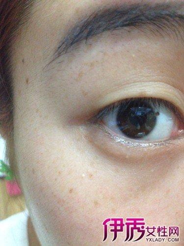 眼睛裡面有黑點怎麼辦 眼睛斑點6點鑑別診斷 - 壹讀