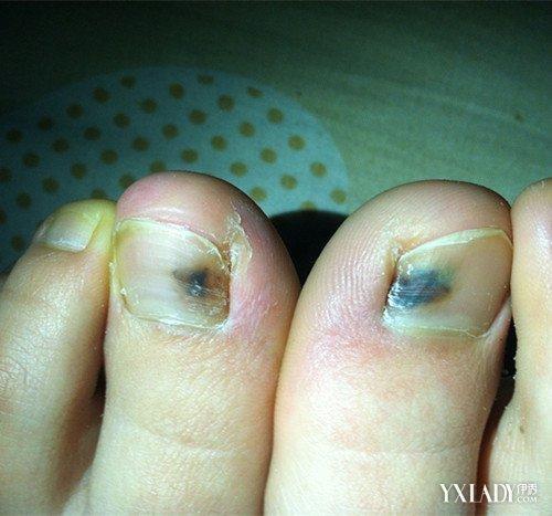 腳指甲突然變黑怎麼辦 7種問題指甲情況需注意 - 壹讀