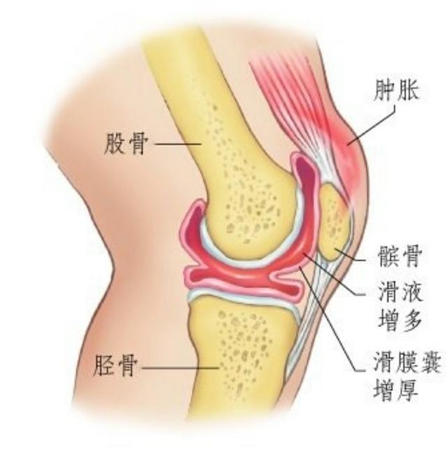 今天。讓我們擺脫這個疾病:膝關節滑膜炎! - 壹讀