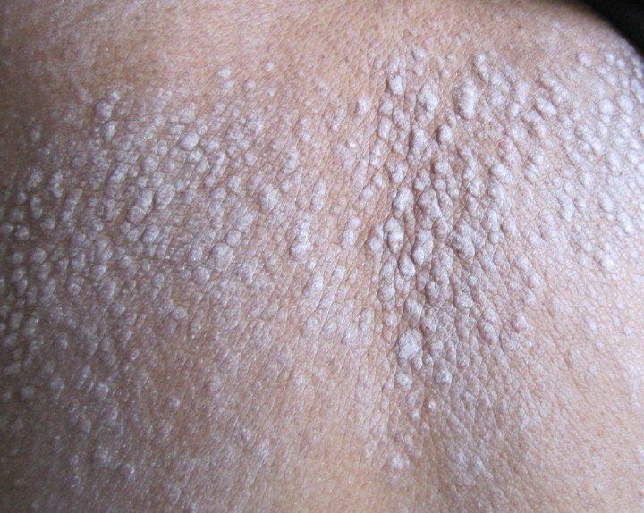 你知道皮膚病的種類有哪些嗎? - 壹讀