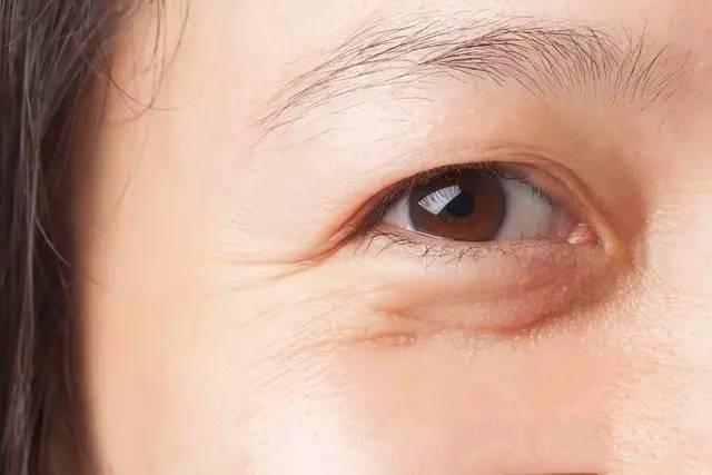 去除眼部細紋小竅門!簡單方法教你消除眼部細紋干紋 - 壹讀