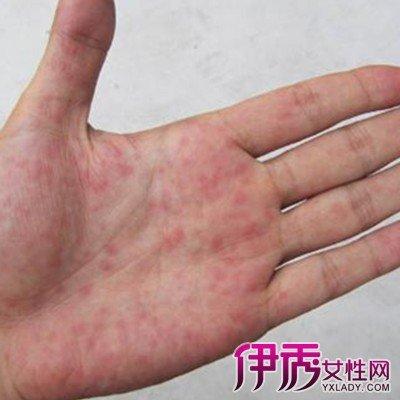 手掌癢有紅點的原因是什麼 幾步幫助你快速斷定病因 - 壹讀