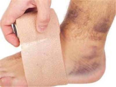 腳踝關節扭傷該如何急救? - 壹讀
