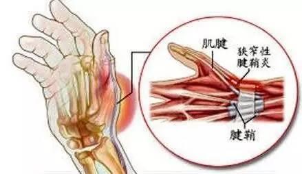 肌腱炎 腱鞘炎 手指和手腕的慢性殺手! - 壹讀