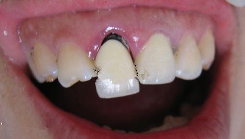 根管治療之後。醫生說帶牙套牙齒會發黑。有什麼影響嗎? - 壹讀