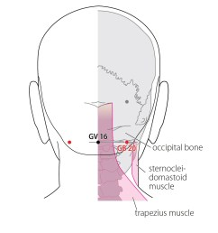 indications headache visual dizziness pain and stiffness of the neck painful reddening of the eyes deep source nasal congestion pain in the shoulder  [ 1175 x 1500 Pixel ]