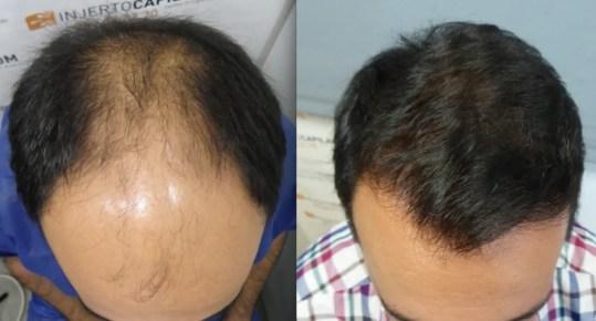Soluciona tu alopecia