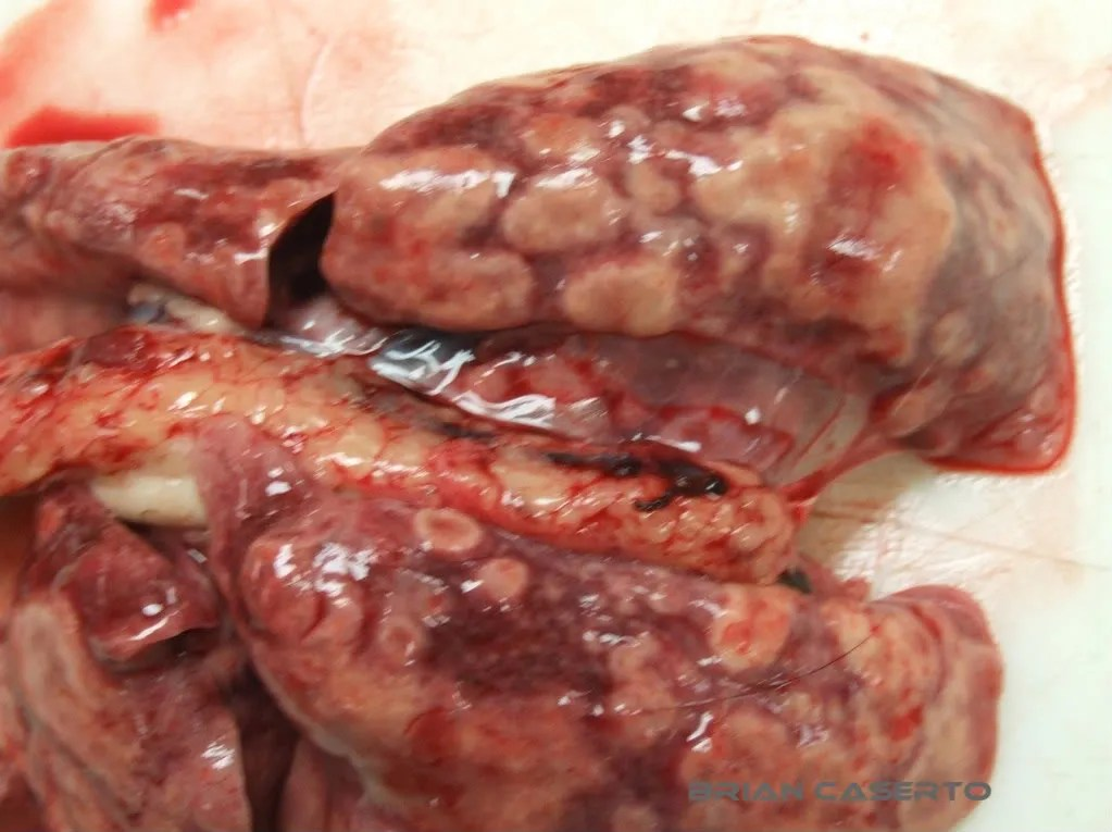 Lung, multifocal to coalescing granulomas