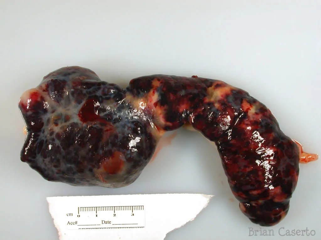 Spleen with multifocal large firm masses