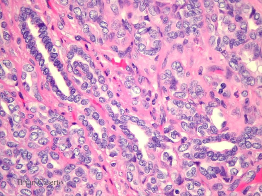 Uterus: Close up of neoplastic cells