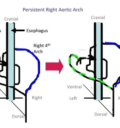 persistent right aortic arch adapted from noden and delahunta 1985  [ 1024 x 768 Pixel ]