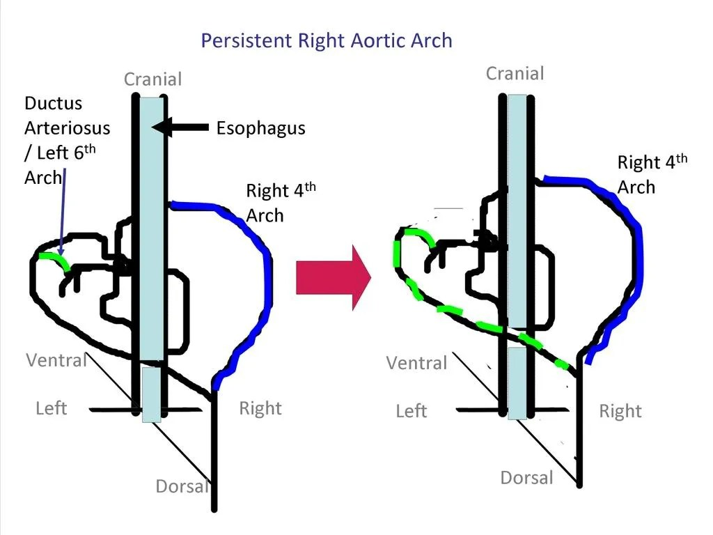 hight resolution of persistent right aortic arch adapted from noden and delahunta 1985