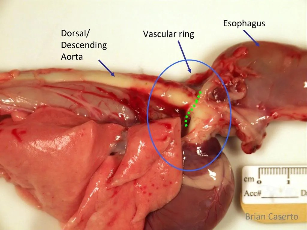 hight resolution of view from the right side cranial is to the right the aorta forms the right border of the ring the esophagus is passing through the vascular ring