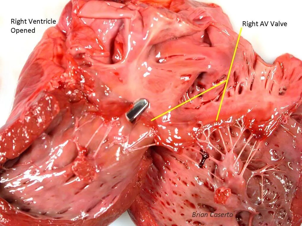 Ventricular Septal Defect from right side