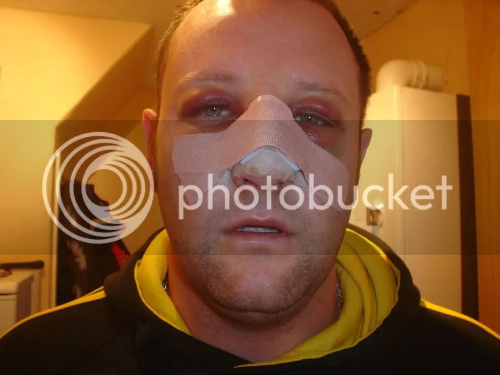 nose job gone wrong