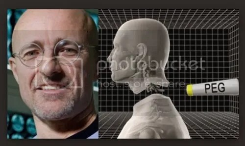 photo operasi-nyambung-kepala_zpsdfsrdasb.jpg