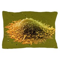 Prostate cancer cell, SEM Pillow Case by Admin_CP66866535