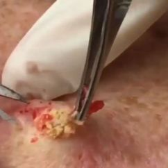 Diagram For Pimples On Face 1955 Chevy Truck Horn Wiring Meet 'dr Pimple Popper' - Whose Wince-inducing Clips Of Zits Being Drained Have Made Her An ...