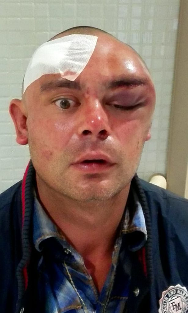Kenny McSween after he claims he was assaulted in the lobby of his Ibiza apartment