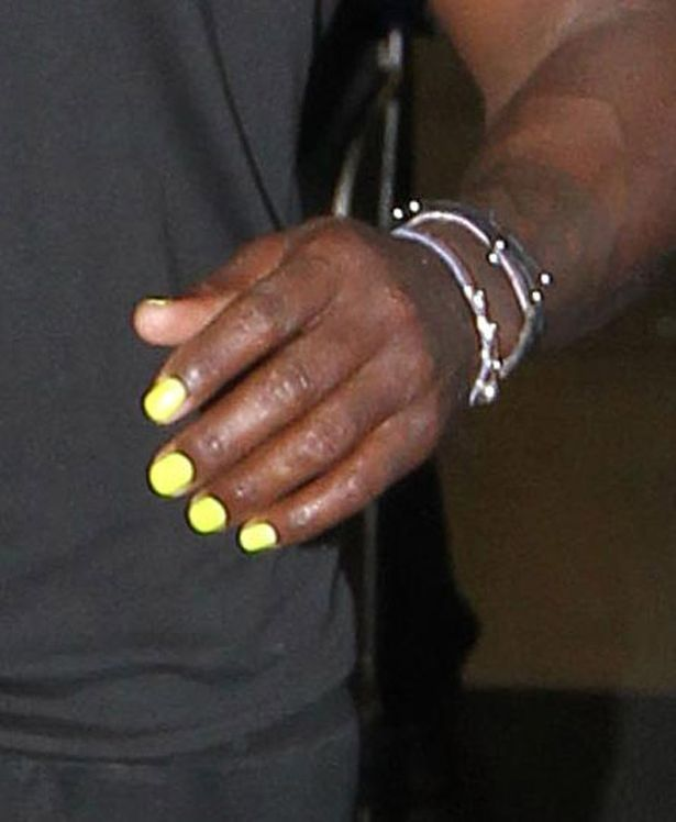 Seal Arrives In Australia Wearing Bright Yellow Nail