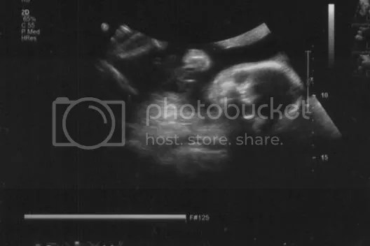 2nd Ultrasound Picture