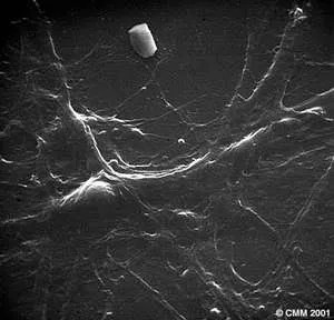 Neurons (Microscopy)