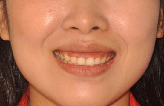 你家孩子張嘴笑時露牙齦了嗎?別不把這當回事! - 壹讀