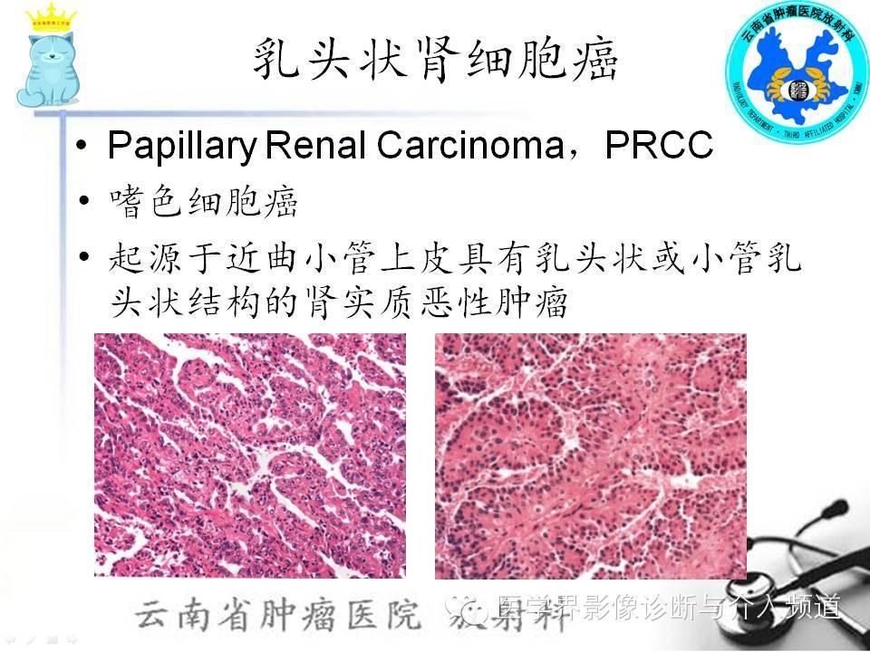 腎細胞癌CT診斷及鑑別診斷 - 壹讀