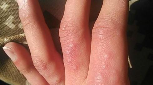 手指上起小水泡很癢,打斷長水泡,倘若不當濫用,癥狀還會反覆出現,不知是什麼問題?建議用什麼藥擦比較好?